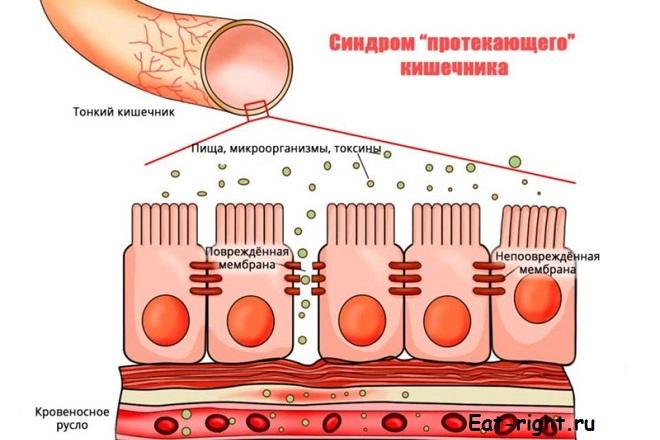 дырявый кишечник